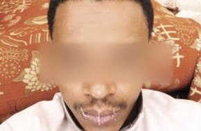 شاب سعودى يخيط فمه لعدم صرف مستحقاته من مالية جازان